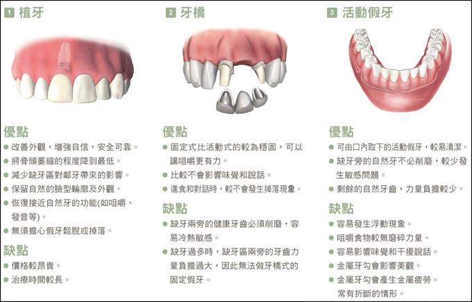植牙、牙橋、活動假牙之比較